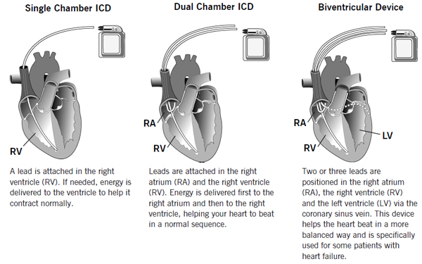 Types-ICD